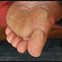 Baby Foot Exfoliation Treatment vs. Atopalm Foot and Heel Balm