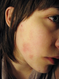 Dealing With Eczema in Fall and Winter