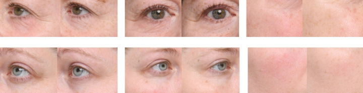 Moisturizing Eye Repair Serum